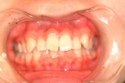 上顎前突(出っ歯)の矯正症例