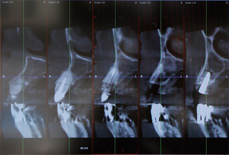 インプラント治療とCT撮影について