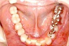 インプラント症例2