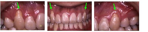 歯周病02